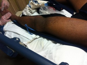 dislocatedknee